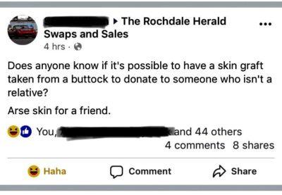 Skin graft query